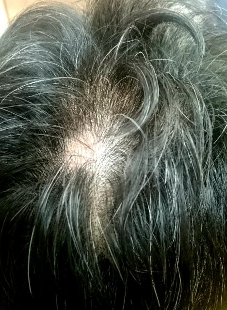 脱毛 症 円形 【クリニック監修】どうして抜ける?ちゃんと治る? 女性の円形脱毛症